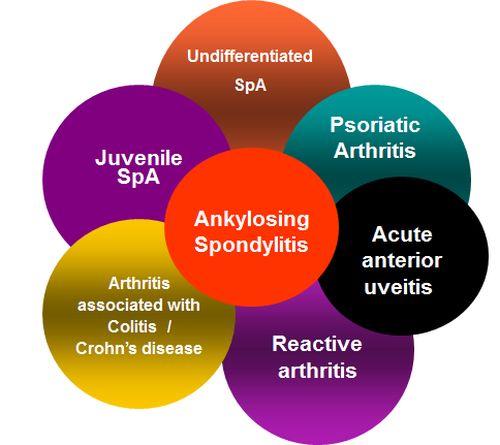 ankylosing spondylitis thesis