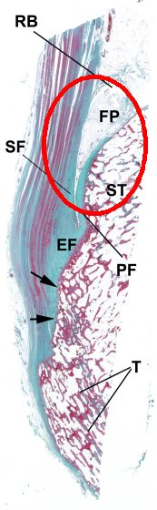 inflammation of the enthesis Inflammation at the enthesis is a characteristic finding of spondyloarthritis historically, enthesis evaluation has been difficult and underestimated over the last few years, ultrasound has proved to be highly sensitive in assessing enthesis involvement.
