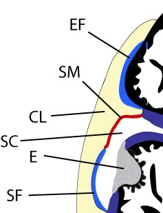 inflammation of the enthesis The enthesis is the region at the junction between tendon and bone and has been suggested to be a key target in spondyloarthritic diseases this zone is now shown.
